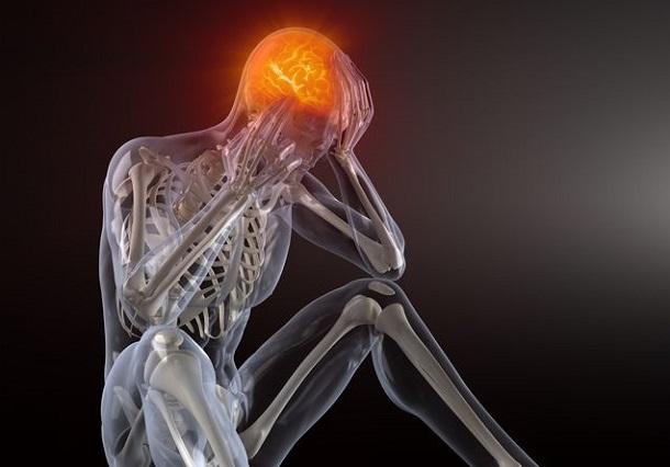 starke Migräne und Kopfschmerzen